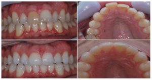 Teeth straightening with clear aligner system Invisalign