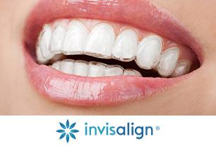 Dentique Invisalign Clear Aligners
