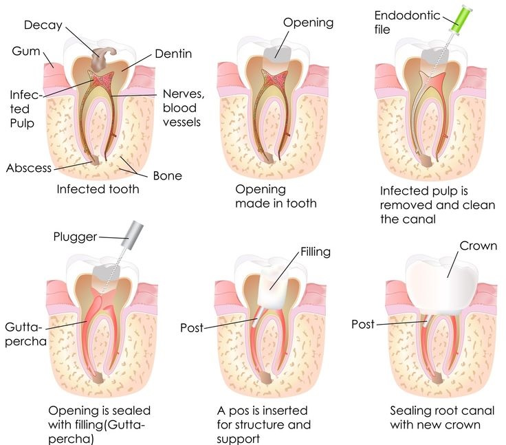 Endodontic Treatment Root Canal Leicester